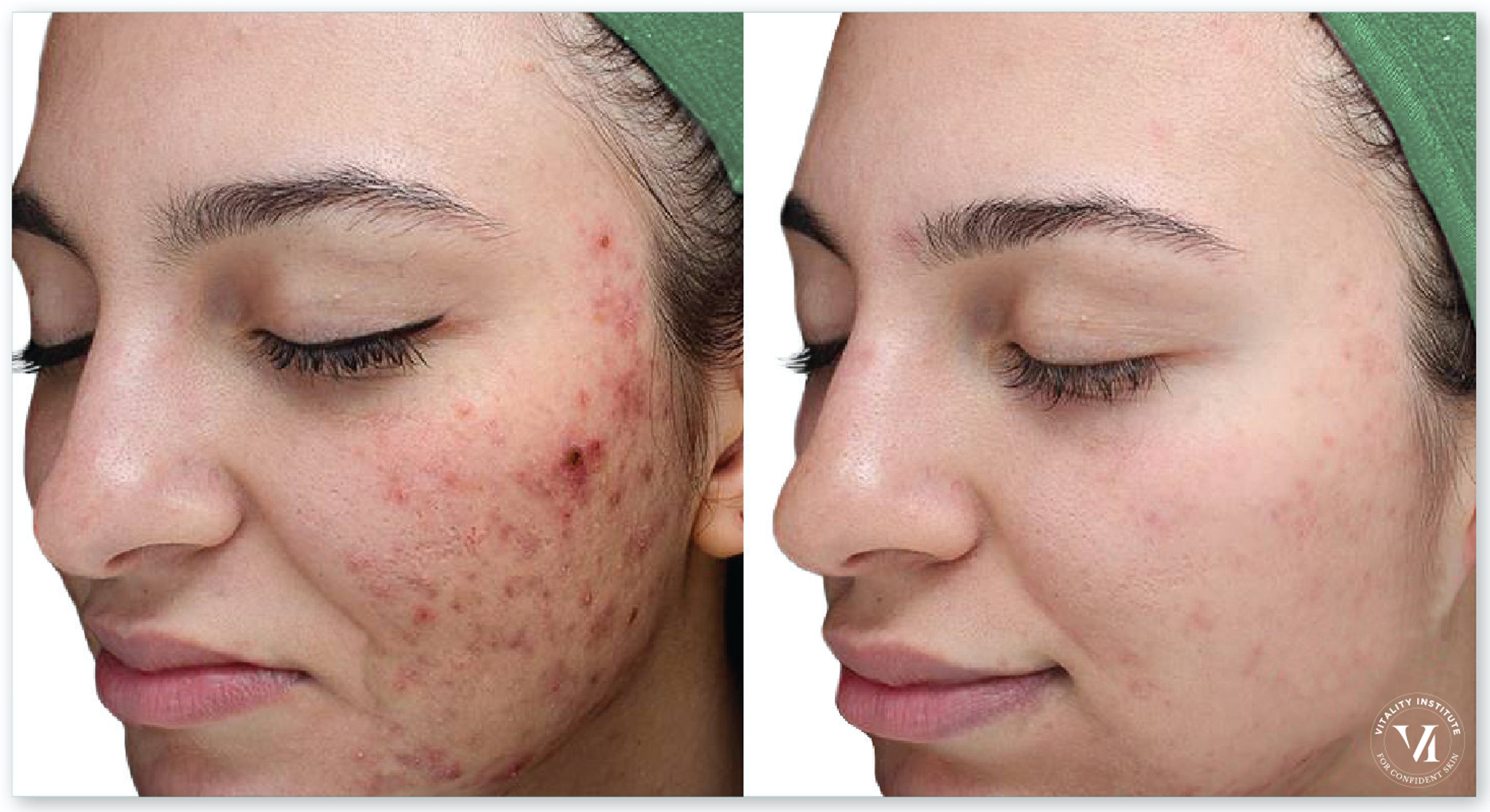 Acne _ Acne Scarring2